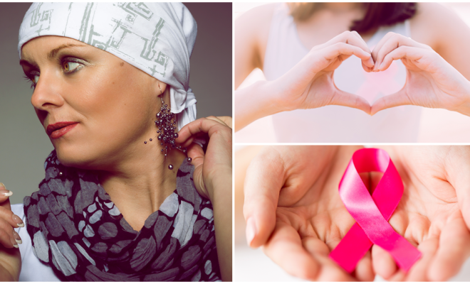 Estos son los cuidados que las mujeres con cáncer deben tener en su piel