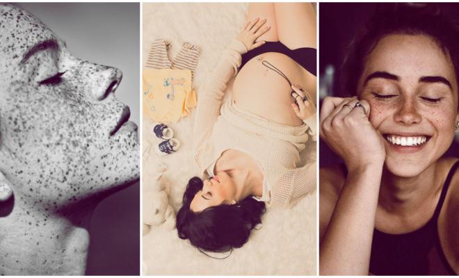 Melasma, la enfermedad que mancha y oscurece tu piel durante el embarazo
