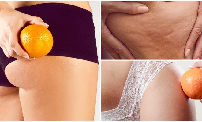 DIY: Mascarillas para reducir la piel de naranja 🍊👊