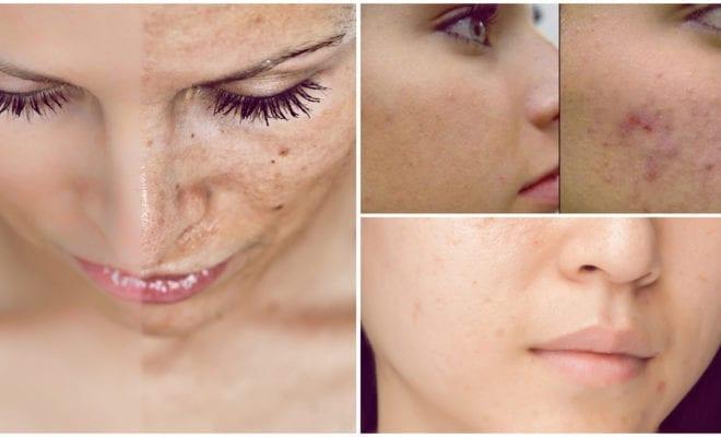 Opciones para deshacerte de las manchitas del acné