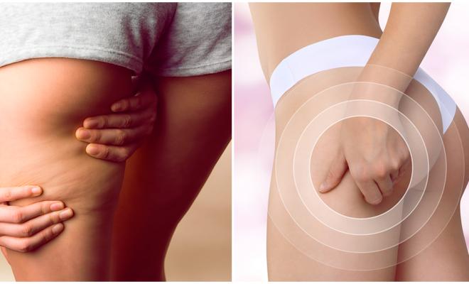 La celulitis es una característica sexual secundaria en la mujer, ¿lo sabías ?
