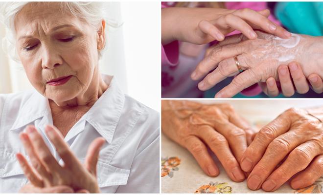 5 remedios con los que puedes combatir la artritis