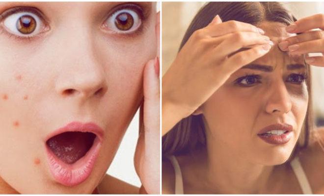 Cómo deshacerte de las marcas de acné; ¡cuida tu piel!