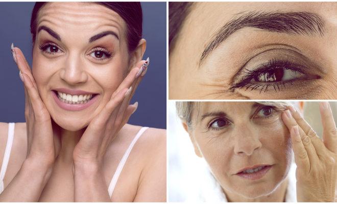 Estos son los 4 diferentes tipos de arrugas; ¡conócelos!