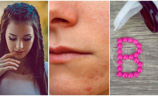 La biotina: el suplemento que hace crecer tu melena ¿causa acné?