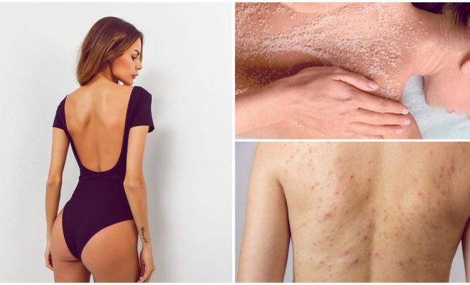 Granitos en la espalda: por qué se hacen y cómo eliminarlos