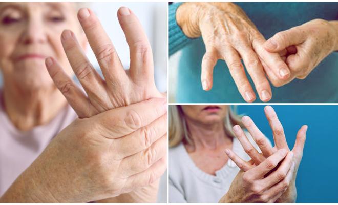 5 formas de evitar la artritis reumatoide