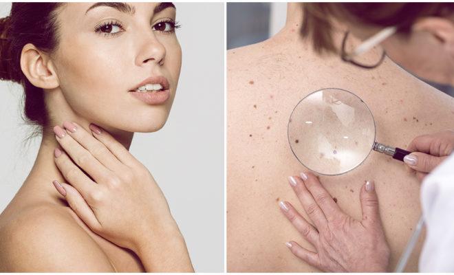 Las enfermedades más comunes que atacan a tu piel