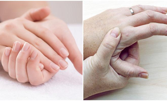 Elimina las manchas de las manos con este DIY