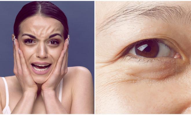 S.O.S: Primeras arrugas, ¿qué les hacemos?