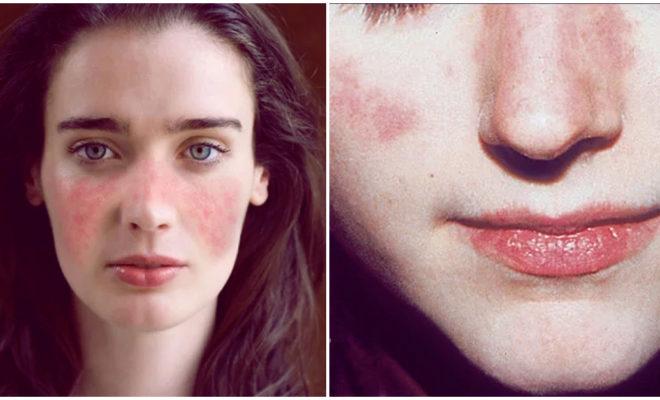 Lupus y el tratamiento alternativo para combatirlo de manera natural