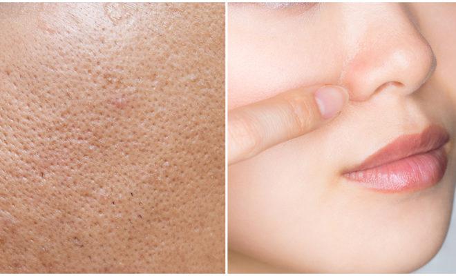 Tratamientos para lucir una piel sin poros abiertos