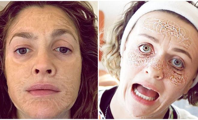 Nuevo tratamiento de belleza convierte tu rostro en piedra… y te deja guapísima