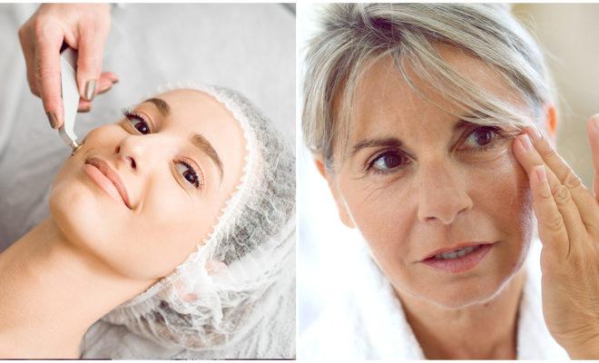 Lifting facial en 3D, menos invasivo y más efectivo