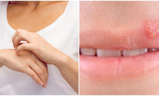 Contagiosos males de la piel que te conviene prevenir