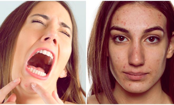 Conoce todo sobre el acné quístico y su tratamiento, ¡auch!