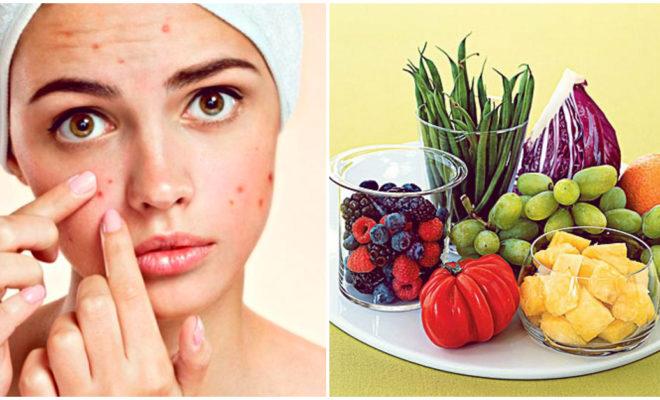 Acné hormonal, cómo prevenirlo con ayuda de la alimentación
