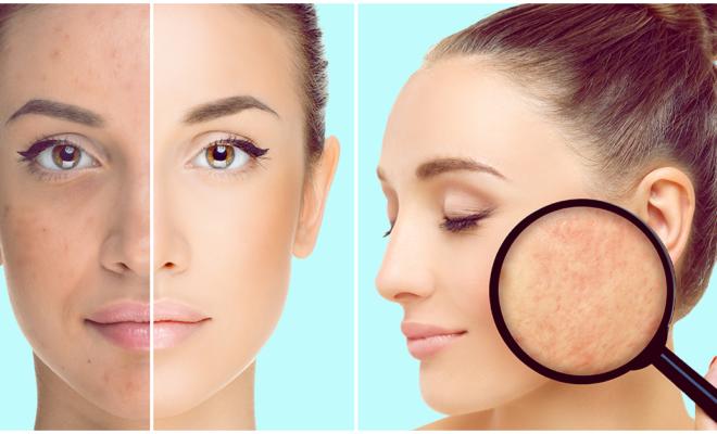 Esos granitos en tu cara pueden ser acné o rosácea