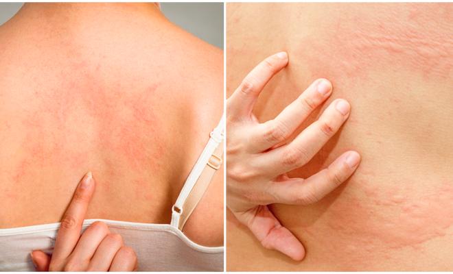 Qué hacer cuando te salen ronchitas en la piel