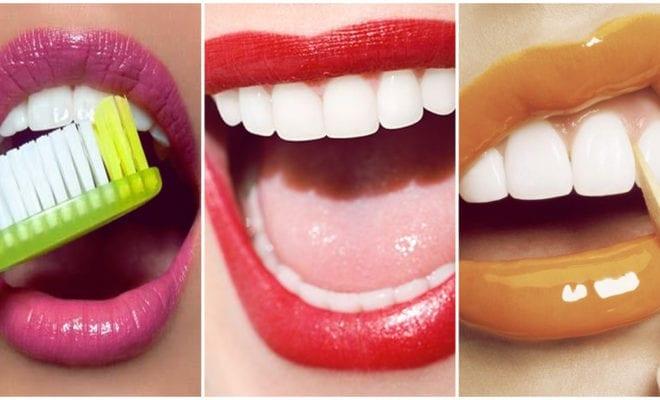 Elimina el sarro de tus dientes para tener una sonrisa de 10