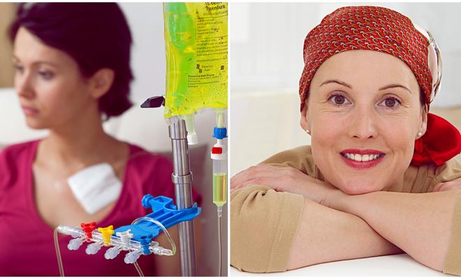 Cómo cuidar la melena cuando se recibe tratamiento de quimioterapia