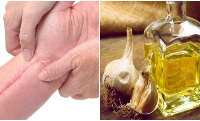 DIY: tratamiento con ajo para borrar cicatrices queloides