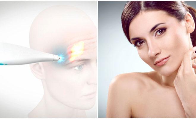 Frotox: ventajas de la crioterapia facial para rejuvenecer tu cutis