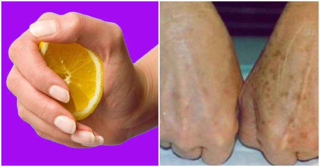 Tratamientos para quitar las manchitas de las manos