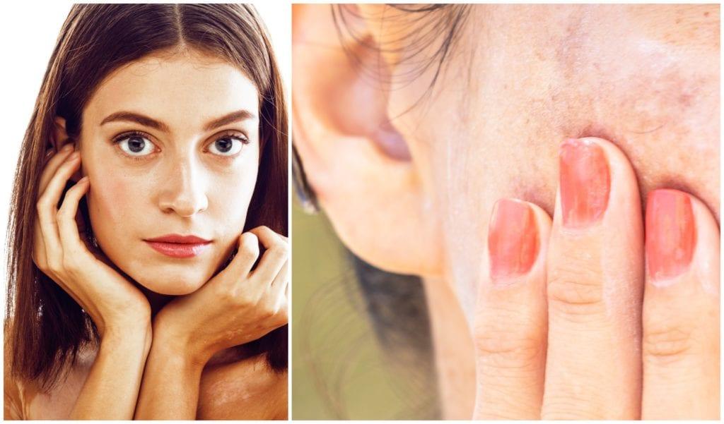 Elimina las manchas de la piel con 3 tratamientos efectivos