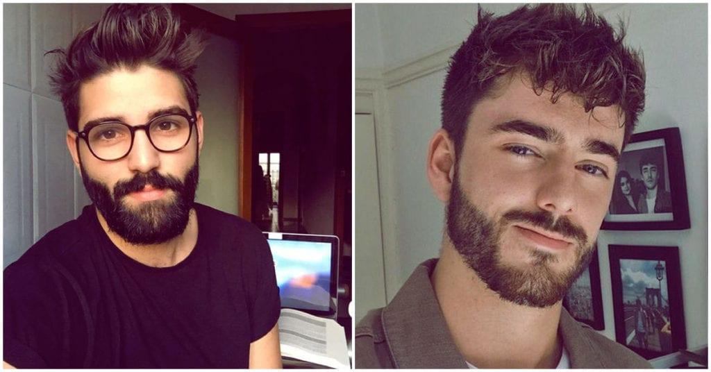 Implante de barba, ¿dejarías que tu novio lo usara?