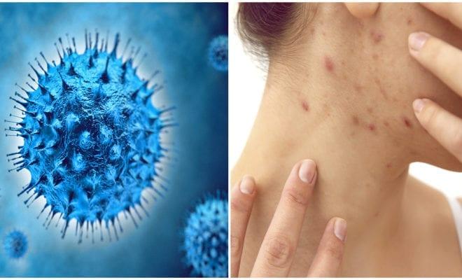 Moluscum contagiosum: no es una broma, ¡es una infección!