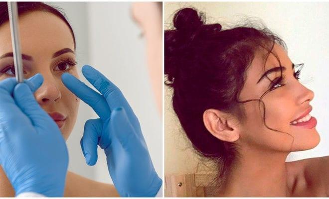 Operarte la nariz: ¿sí o no?