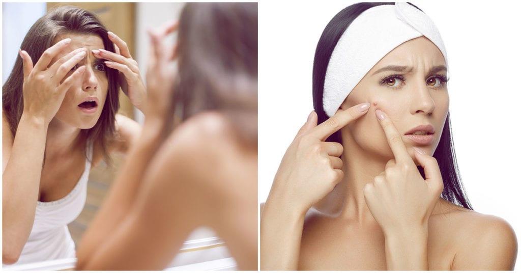 Los granos en tu rostro pueden deberse a estas 6 cosas