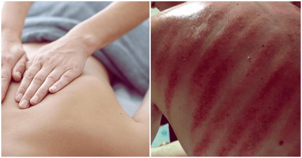 Masaje del dragón, ¿es bueno para tu piel?