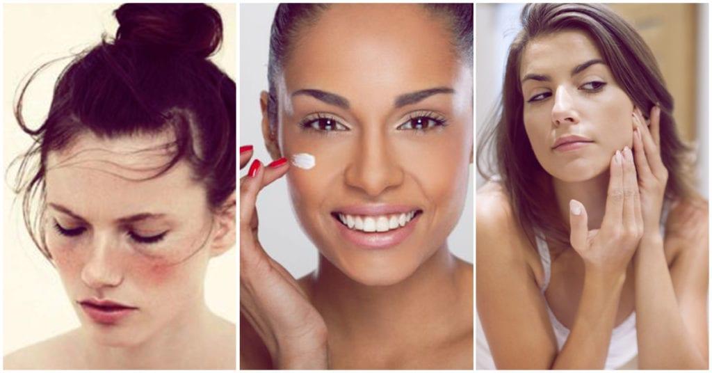 Piel con eczema, cómo maquillarla para no dañarla