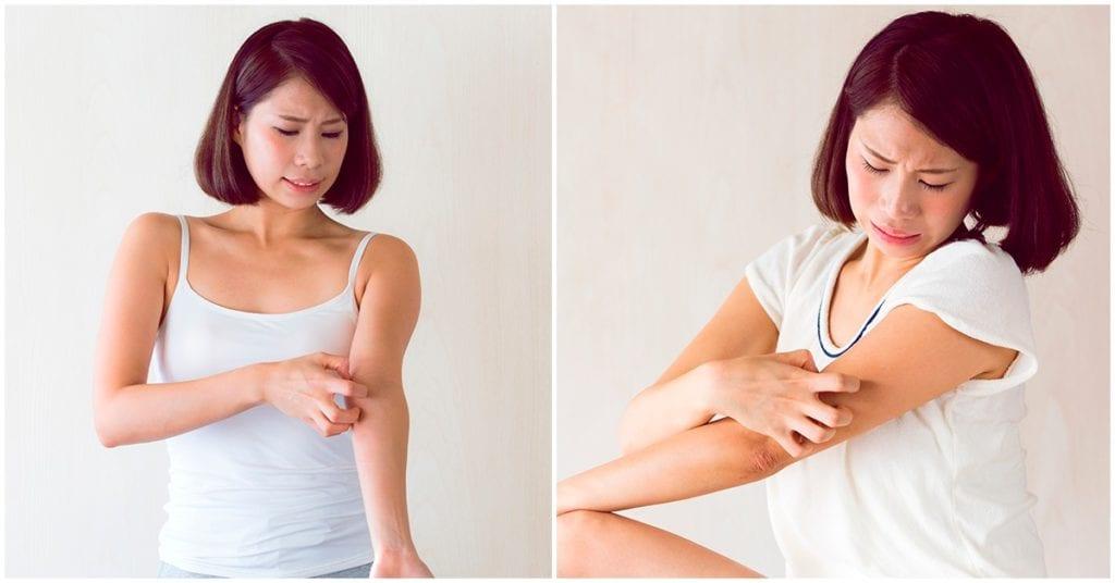 Granitos en la piel: todo lo que debes saber sobre ellos