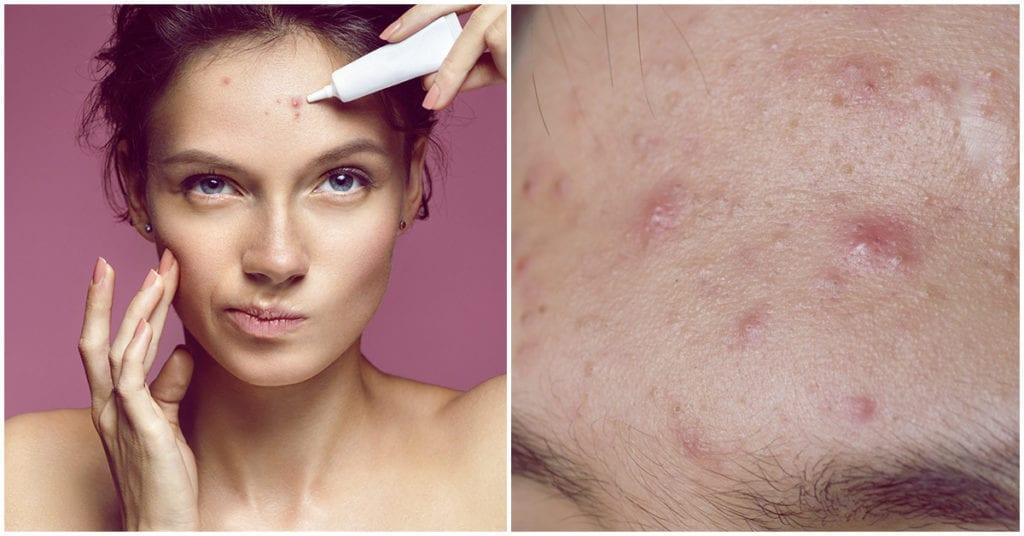 Así te deshaces del acné de forma natural