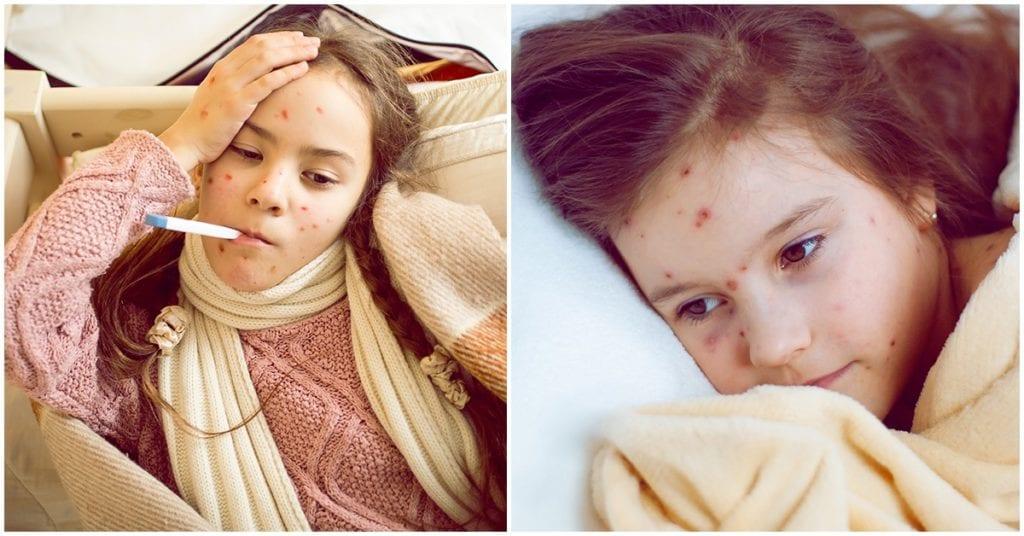 Fiesta de varicela: una tendencia bastante peligrosa