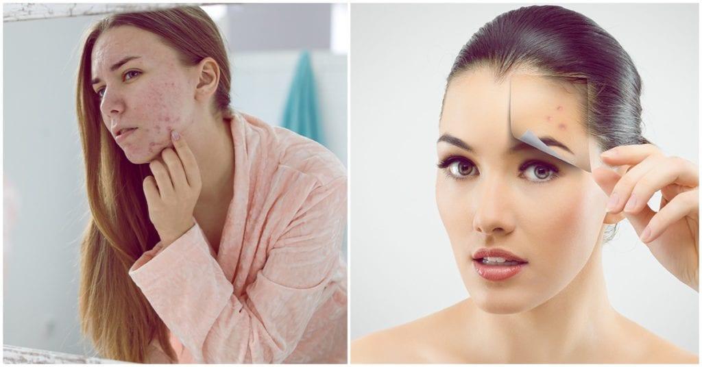 Granitos en el rostro: ¿todos significan lo mismo?