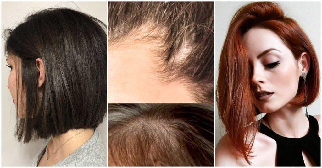 Cortes de melena para chicas con alopecia