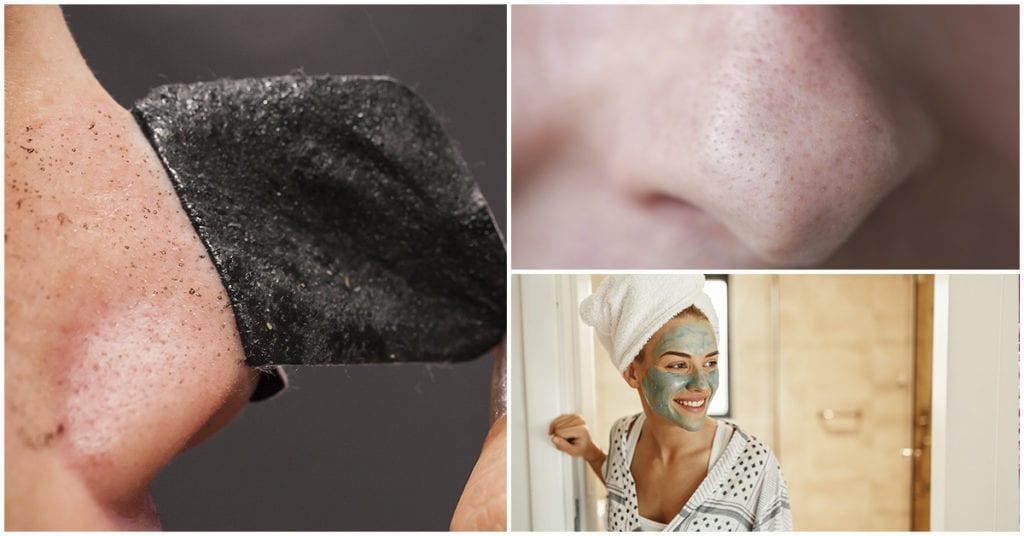 Cómo deshacerte de los puntos negros según un dermatólogo