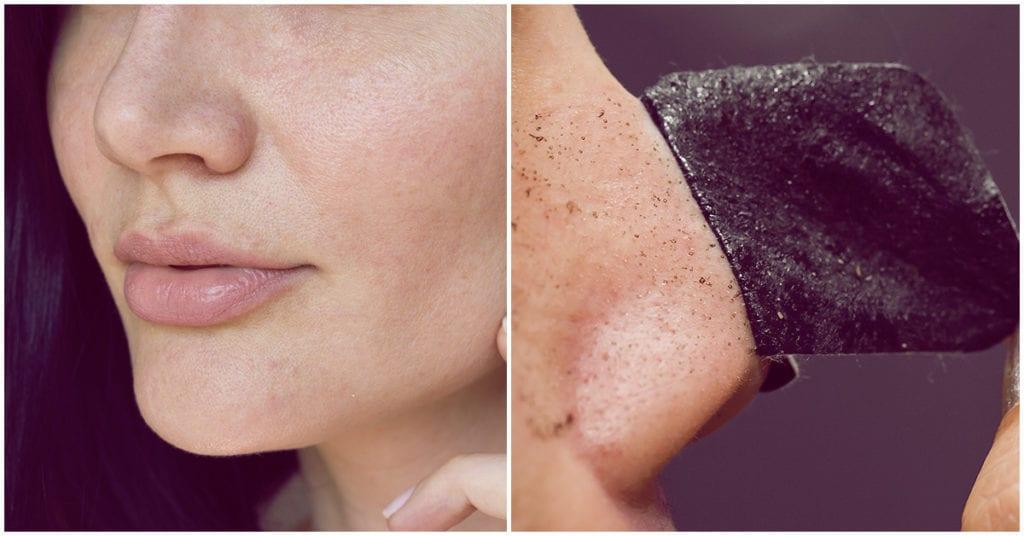 Las tiras limpiadoras de poros podrían dañar tu piel; ¿las has probado?