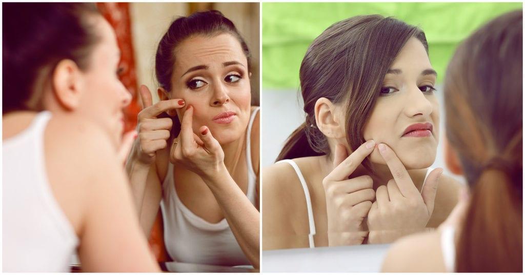 Remedios para deshacerte de los granitos y el acné