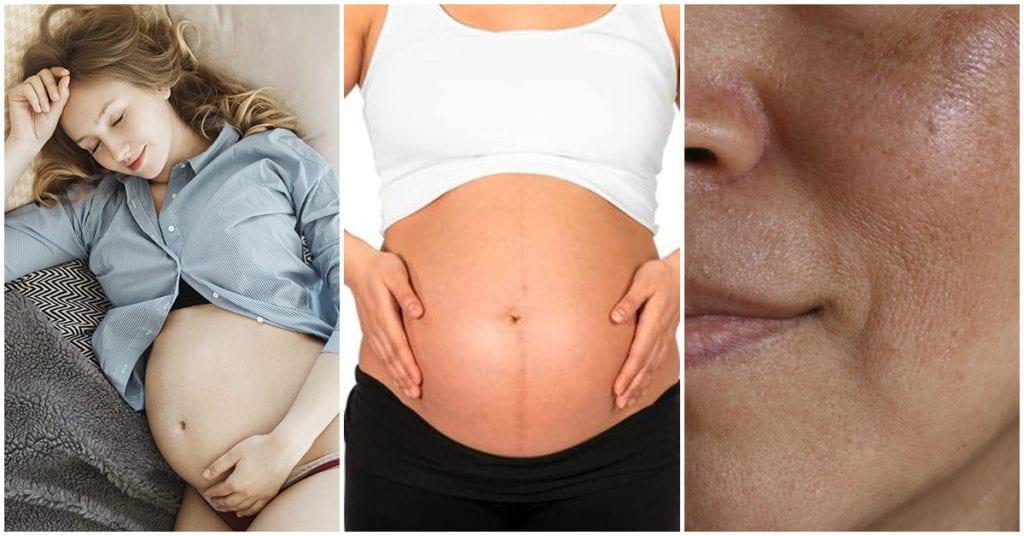 4 cosas que le pasan a tu piel durante el embarazo