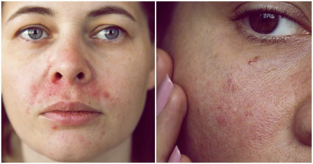 Mi piel se ha vuelto cada vez más sensible y esta es la razón, ¡aguas chicas!