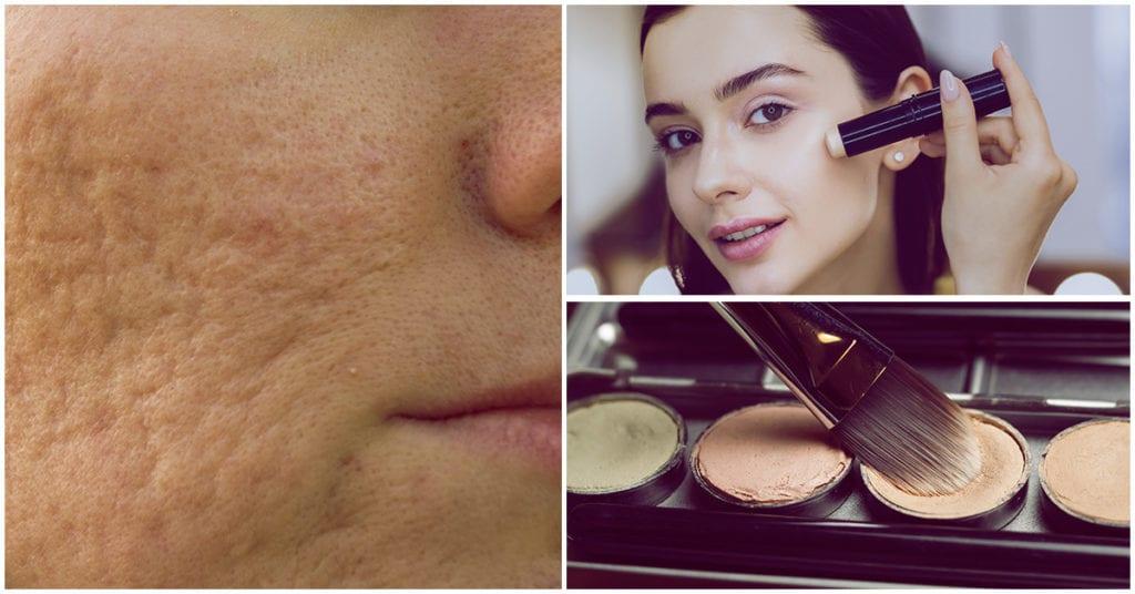 Tips para disimular las cicatrices de acné con makeup
