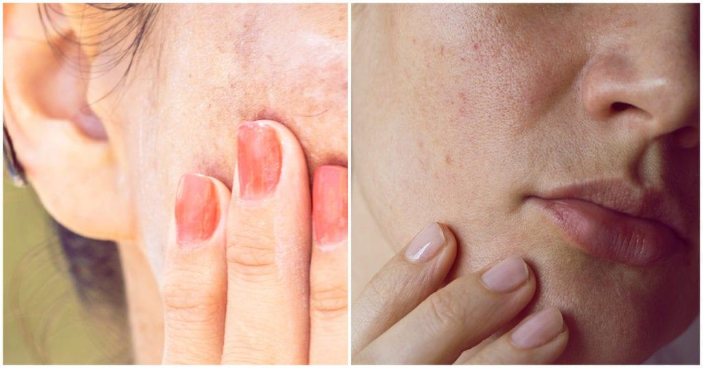 Ácido glicólico: te ayuda a combatir las manchas del rostro