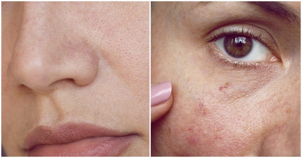 Secretos para disimular la apariencia de los poros abiertos