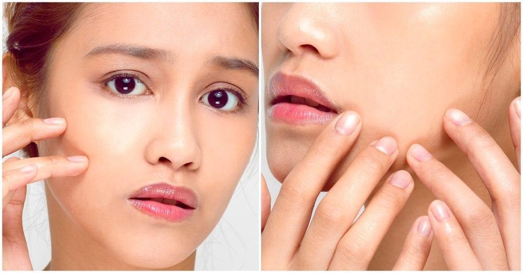 Cirugía de hoyuelos en las mejillas, la nueva obsesión