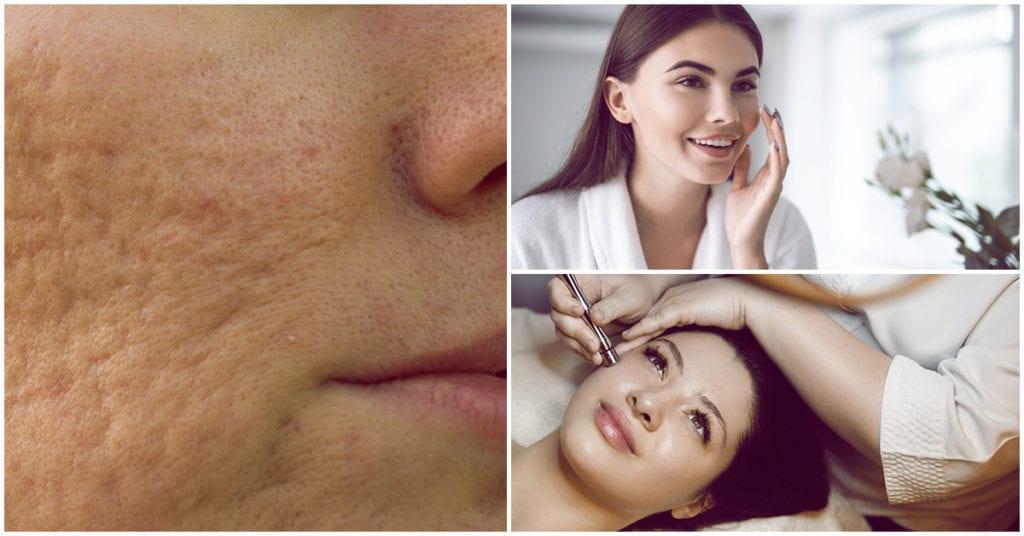 Tips para evitar las cicatrices del acné ¡Deja de tocarte la cara!